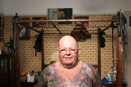 Skin, Anatomy, Matchbox, Australia