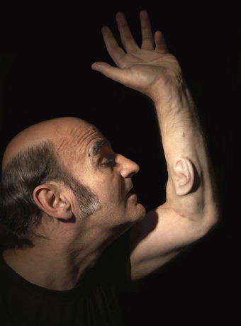 Stelarc, Extra Ear: Ear on Arm